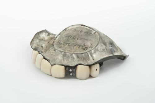 Dentier de porcelaine et argent du XIXème siècle (années 1860, États-Unis), réalisé selon la technique de Claudius Ash