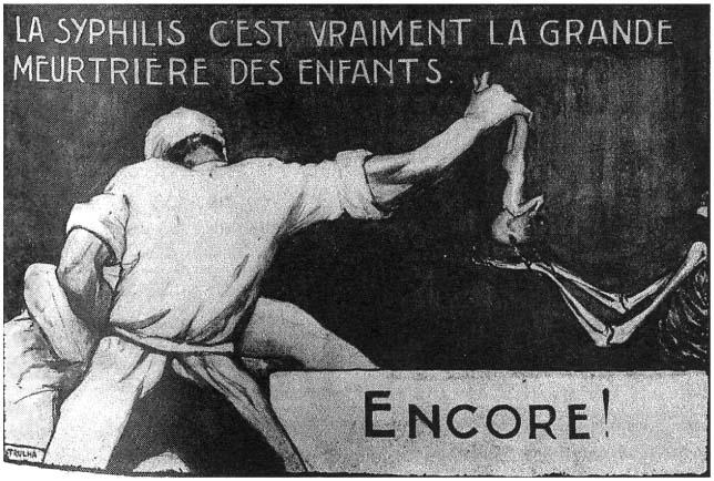 Illustration de Lucien Viborel (1930) montrant les ravages de la syphilis, qui provoquait des fausses couches et des enfants morts-nés, ou encore malades à la naissance